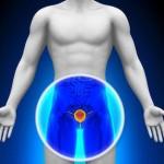 prednisone 5mg per carcinoma della prostata